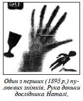 Рентген(1)